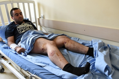 On the July 29 supporters of 'Sasna Tsrer' group who occupied the police station in Erebuni district clashed with the policemen. Injured journalist of A1+ Robert Ananyan and cameraman of Life News web site Tigran Gasparyan were brought to the St. Grigor Illuminator Medical Center in Yerevan, Armenia - Photolure News Agency